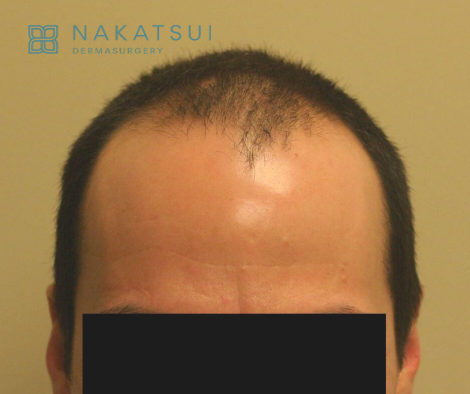 frontal view hair restoration