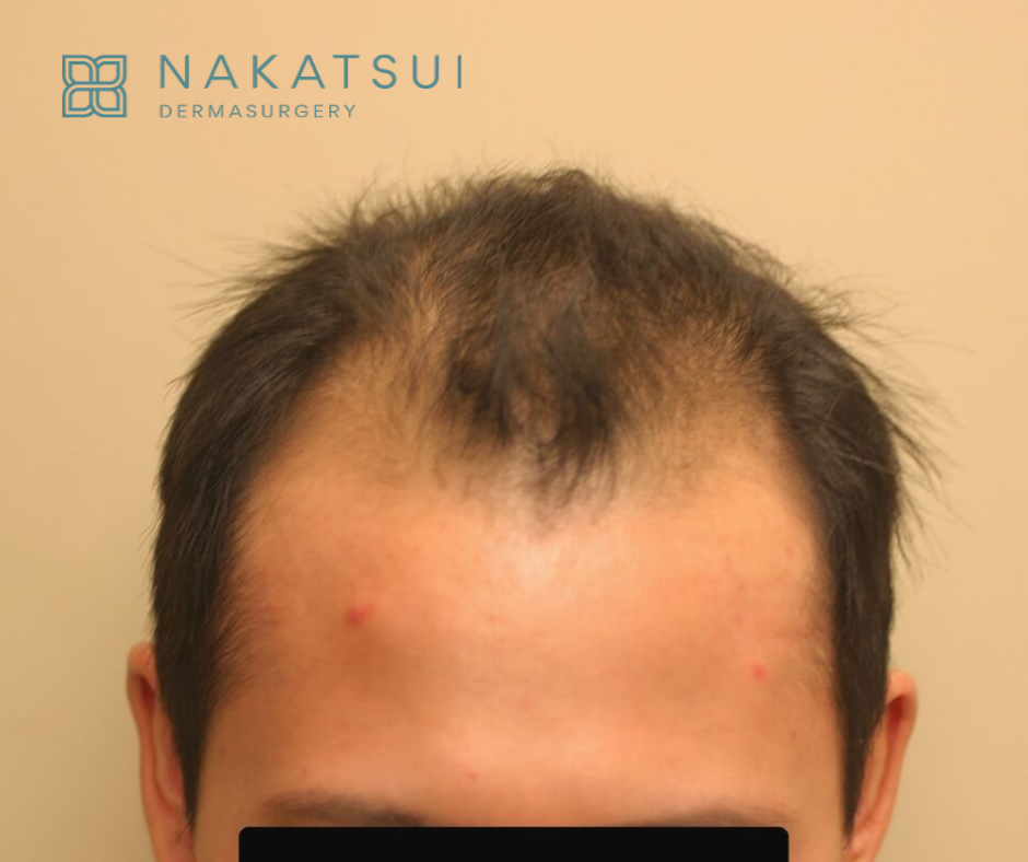 Chinese Hair Transplant Edmonton Front Before