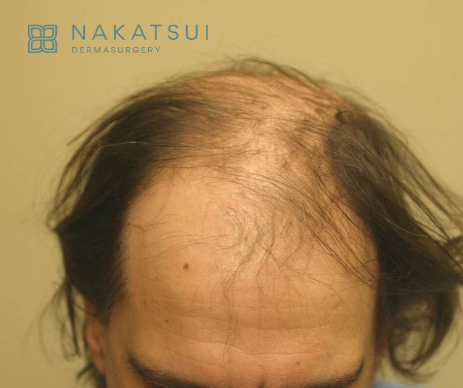 hair restoration edmonton before