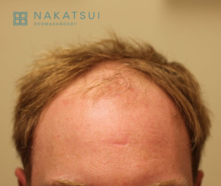 before hair transplant frontal view