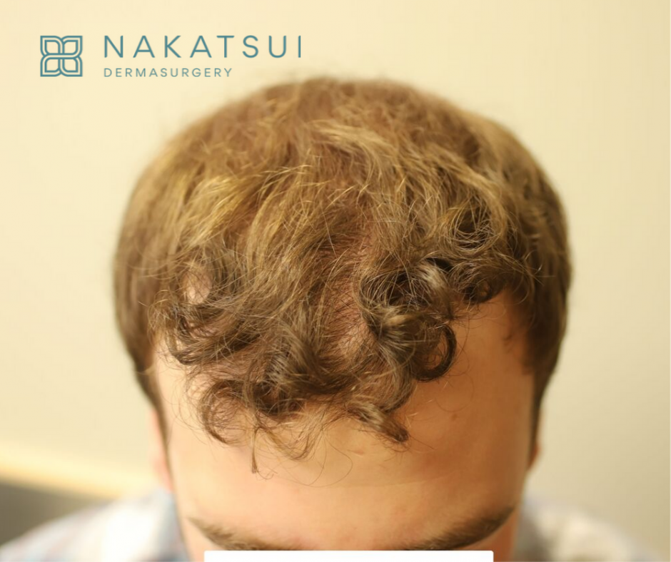 hair transplant edmonton post top