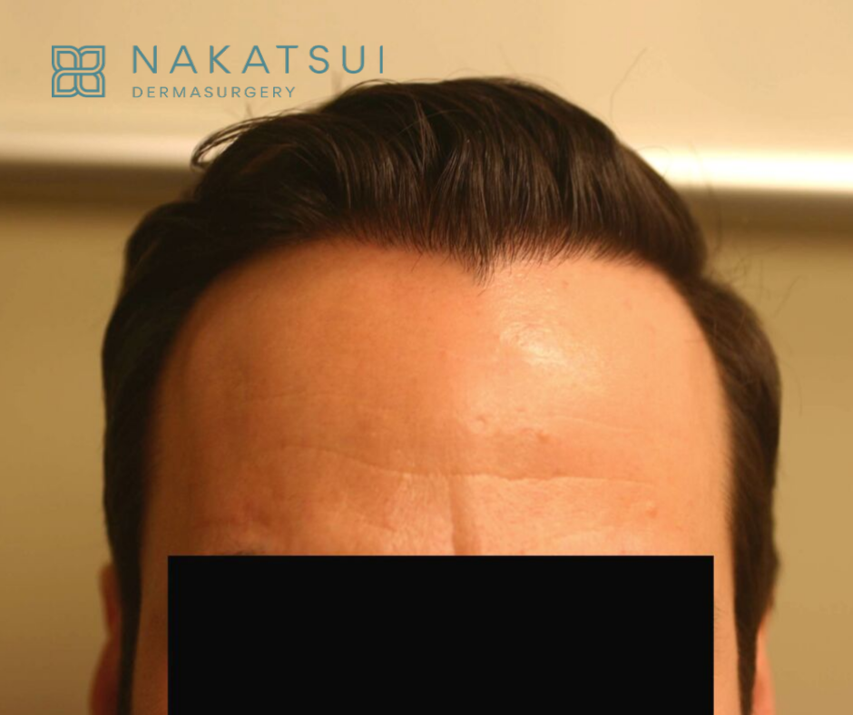 frontal view post hair restoration