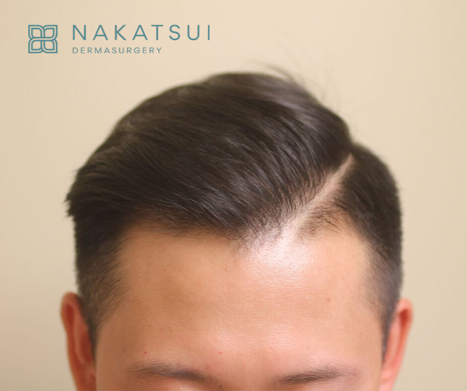 Chinese Hair Transplant Edmonton Front After