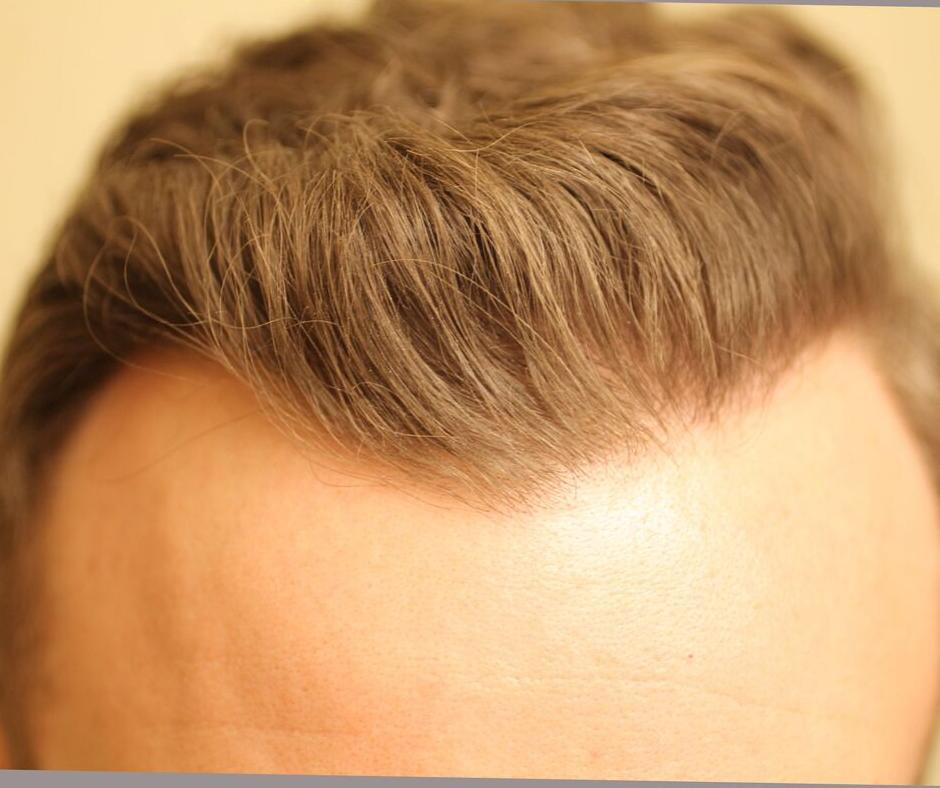 after hair transplant front edmonton