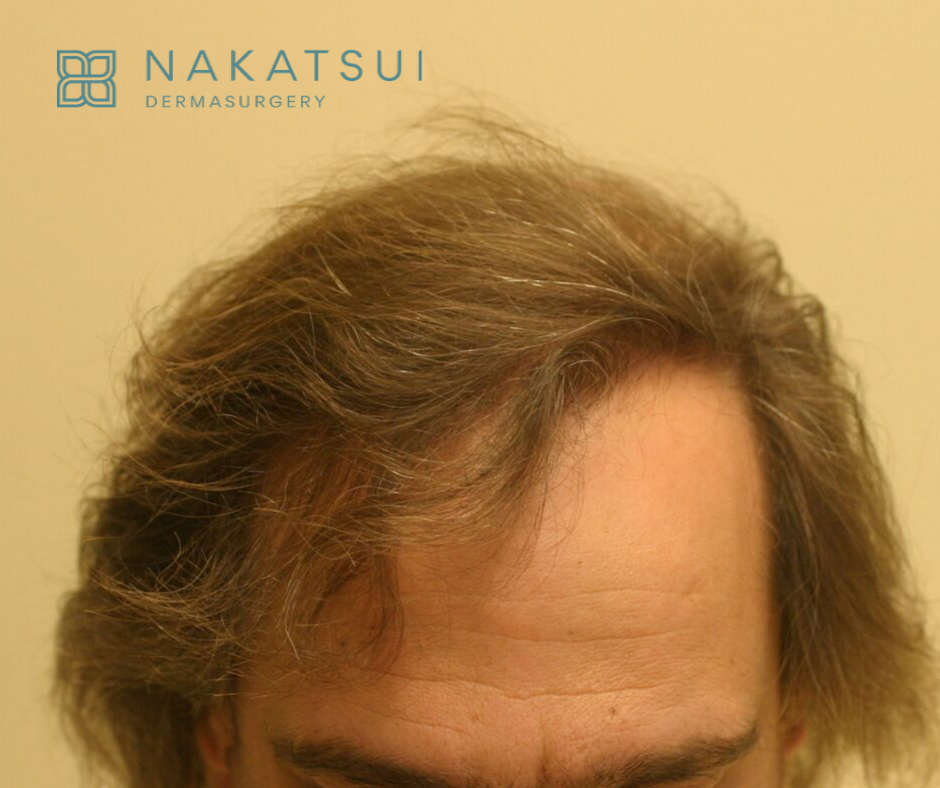 hair restoration edmonton after