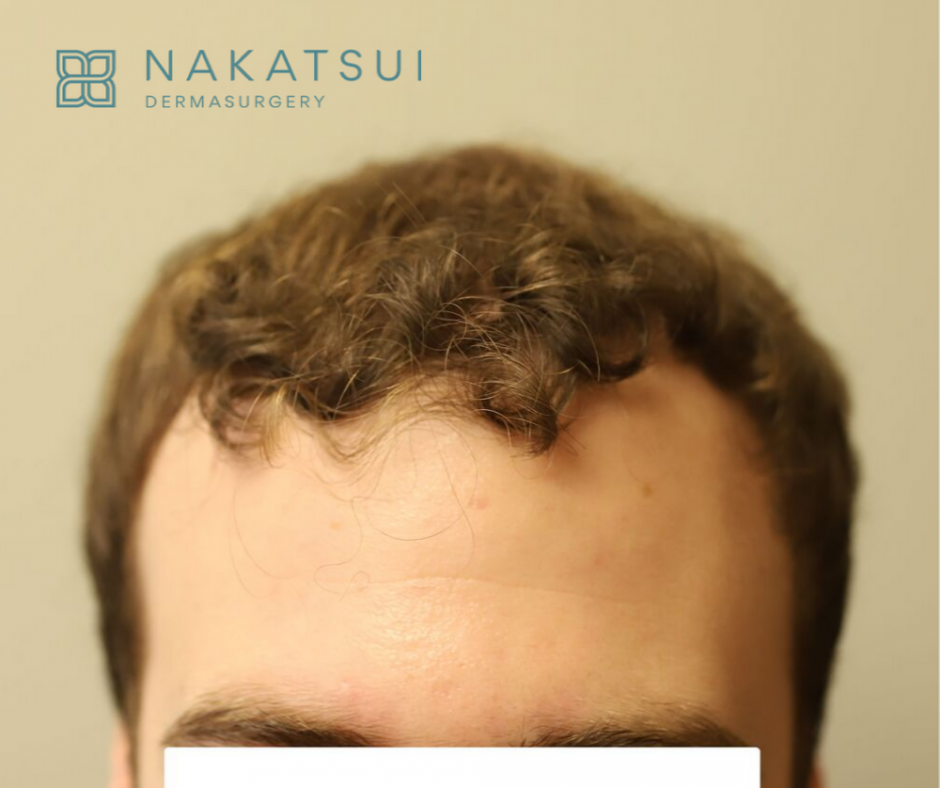 hair transplant edmonton post front