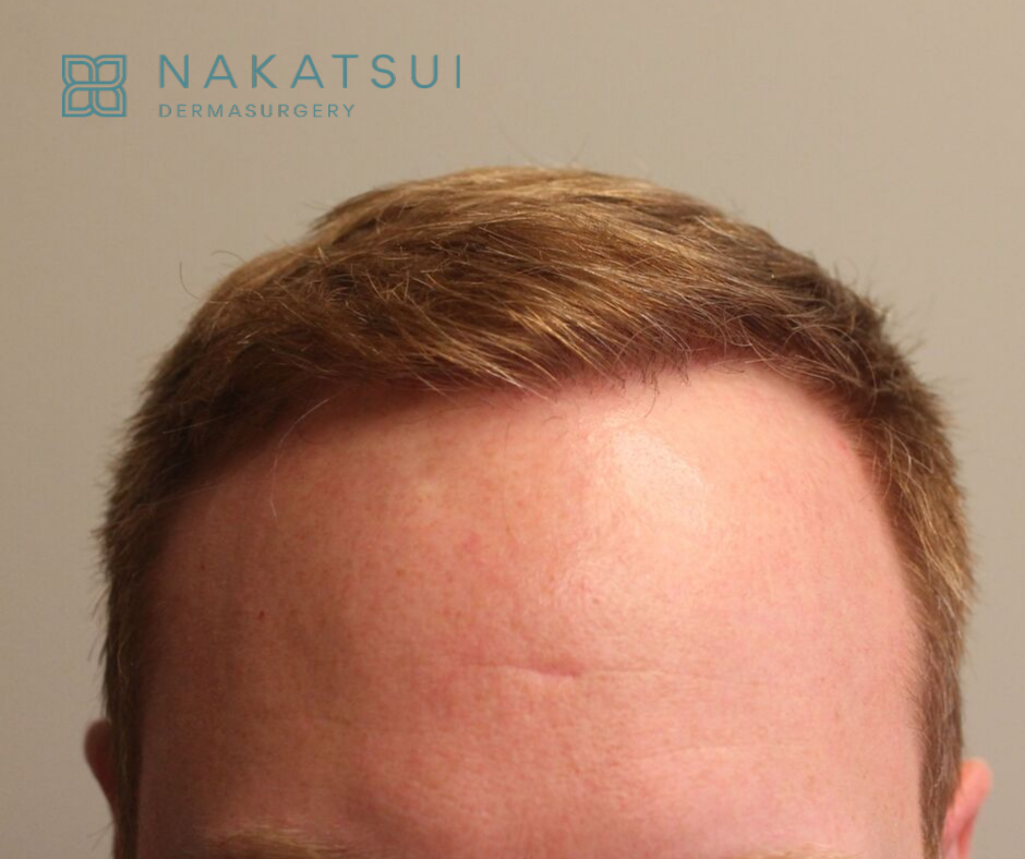 after hair transplant after view