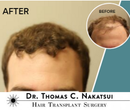 One session FUT hair transplant clinic results frontal scalp  Edmonton Alberta