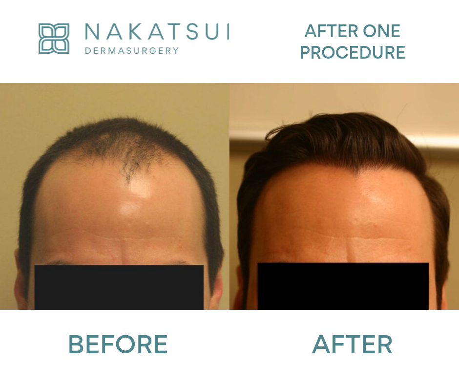 before and after frontal view hair restoration
