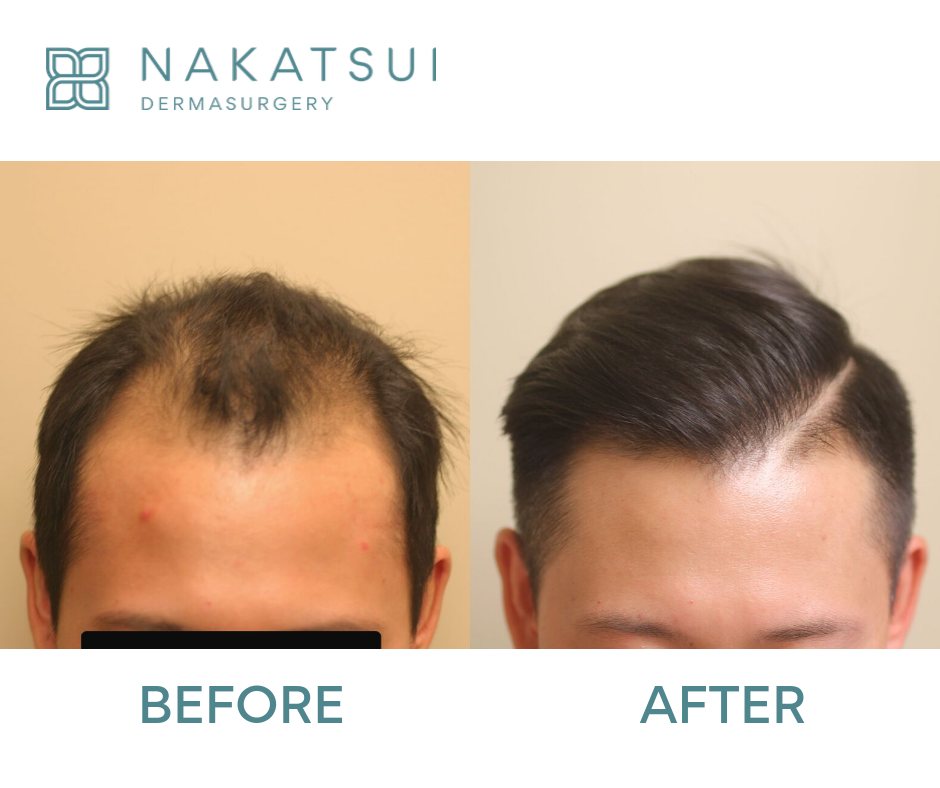 Chinese Hair Transplant Edmonton Front before and After