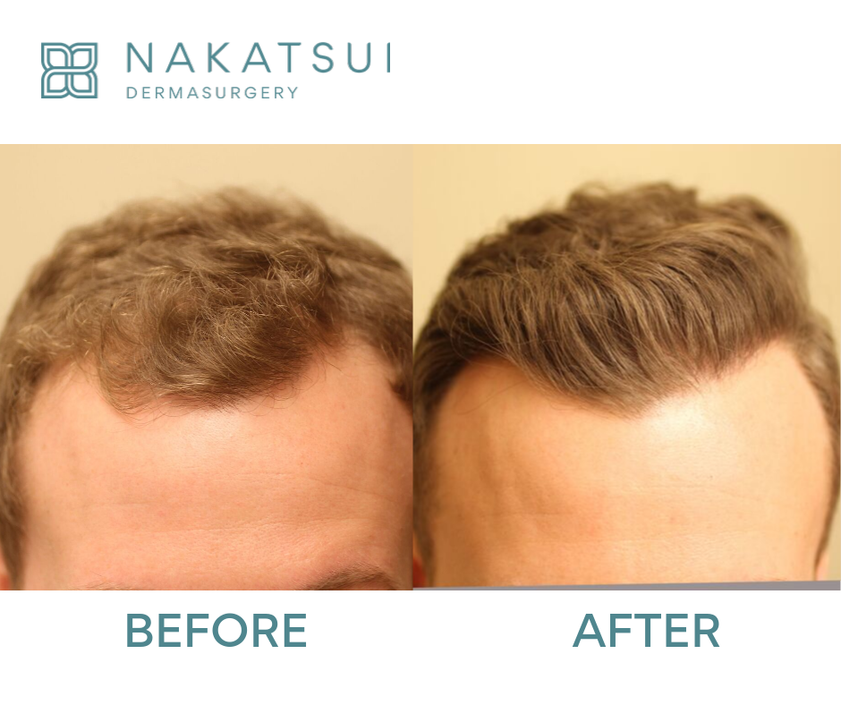 before and after hair transplant front edmonton