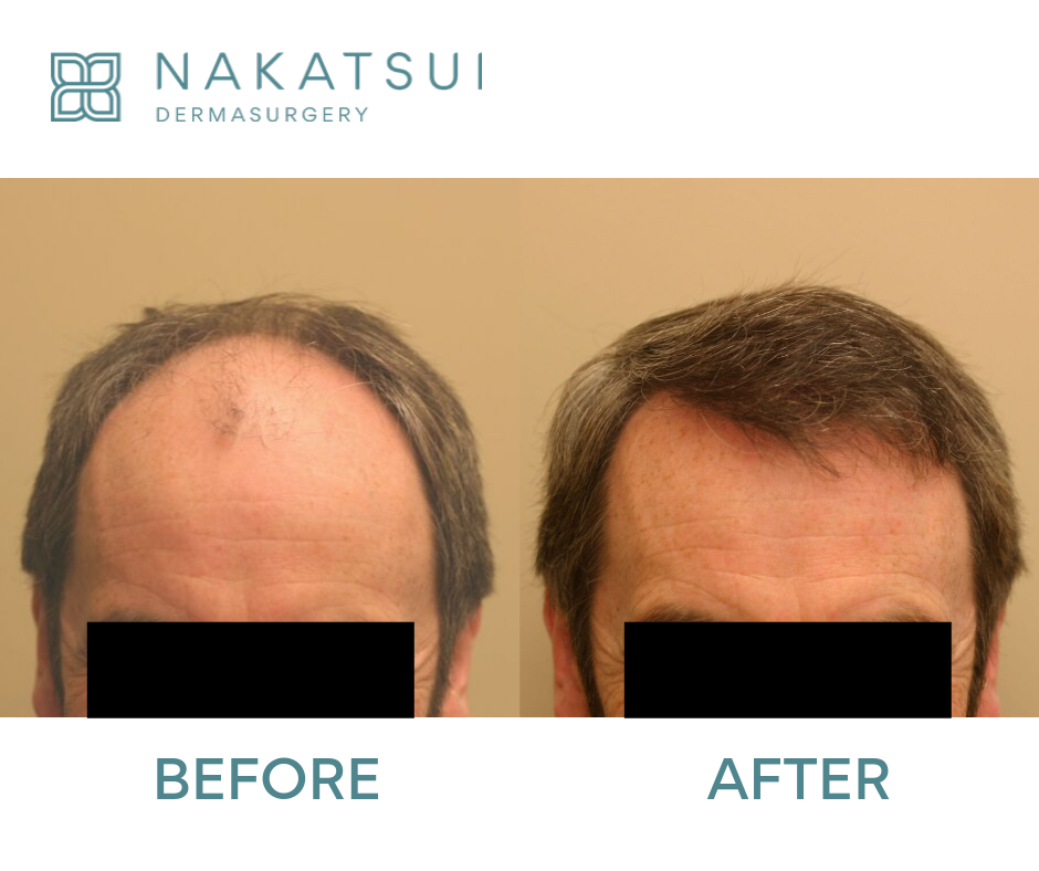 hair restoration 3000 grafts