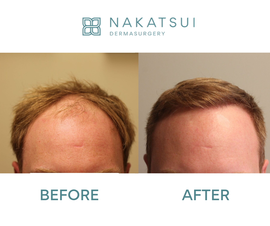 frontal before and after hair transplant