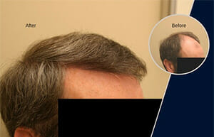 hair transplant before and after 3000 grafts