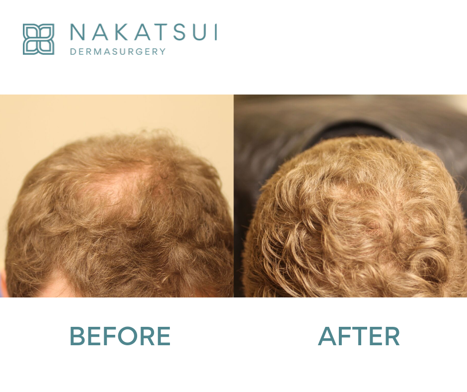 before and after hair transplant top edmonton