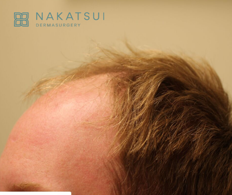 before side view hair transplant