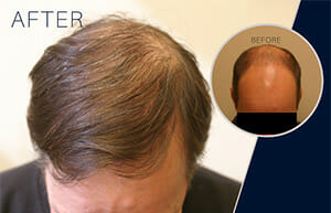 Diffuse hair loss treated with follicular unit hair transplant