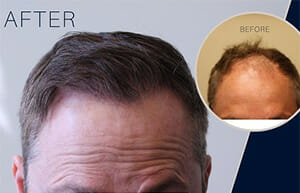 Hair Restoration for diffuse hair thinning Edmonton