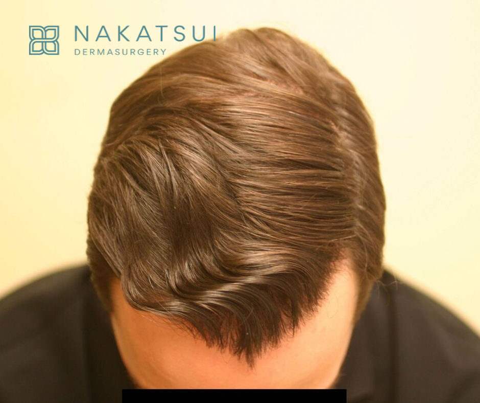 top view hair restoration edmonton