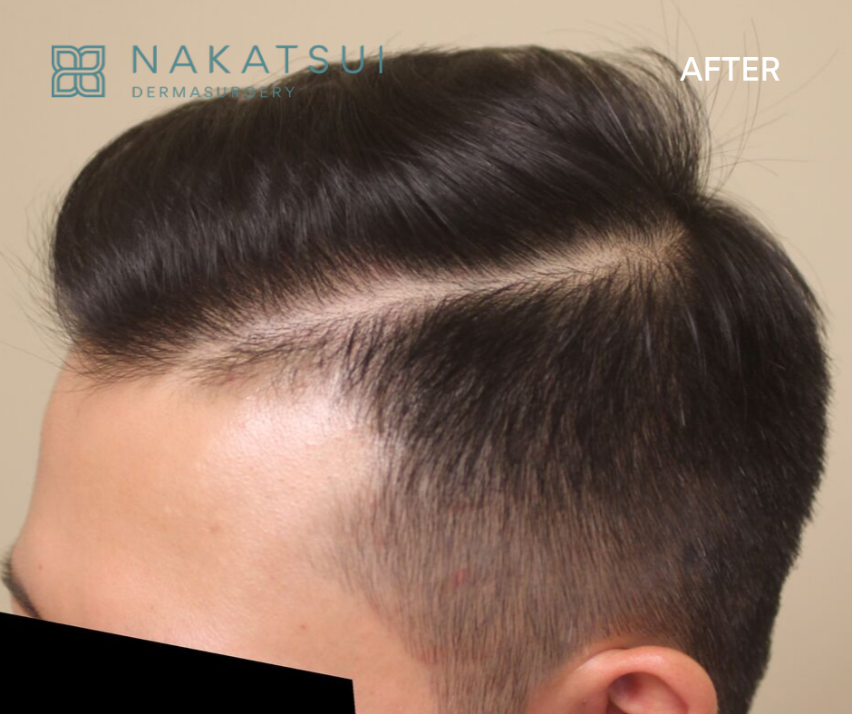 Chinese Hair Transplant Edmonton Left Side After