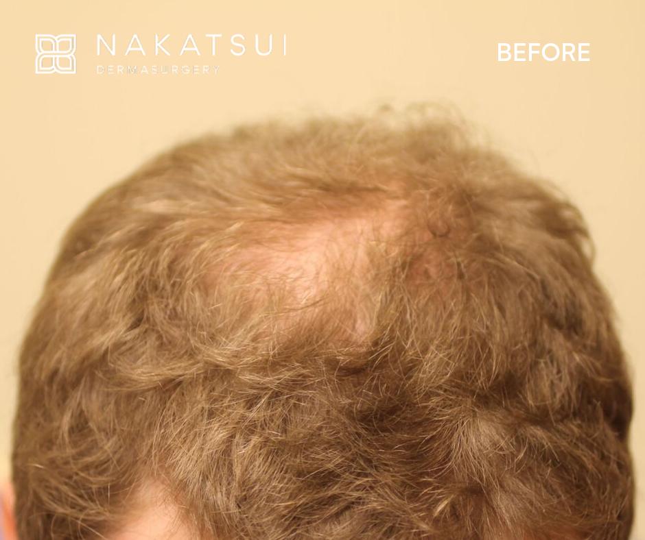 before hair transplant top edmonton