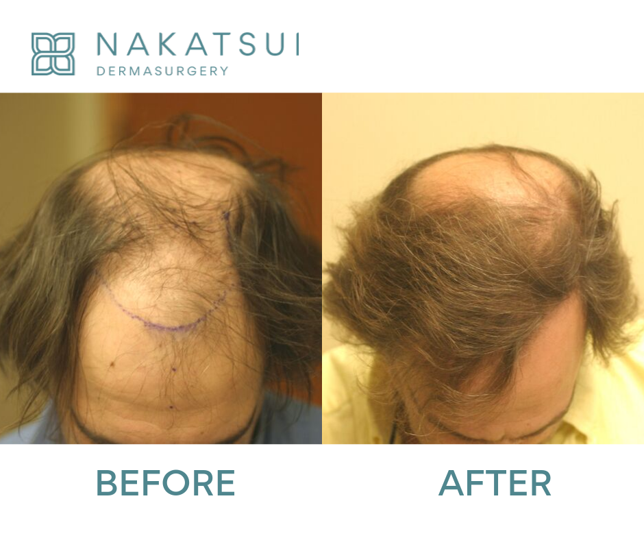 hair restoration edmonton before and after top