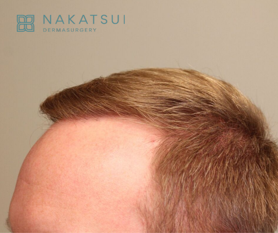 after side view hair transplant