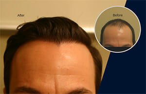 hair transplant 5000 grafts before and after