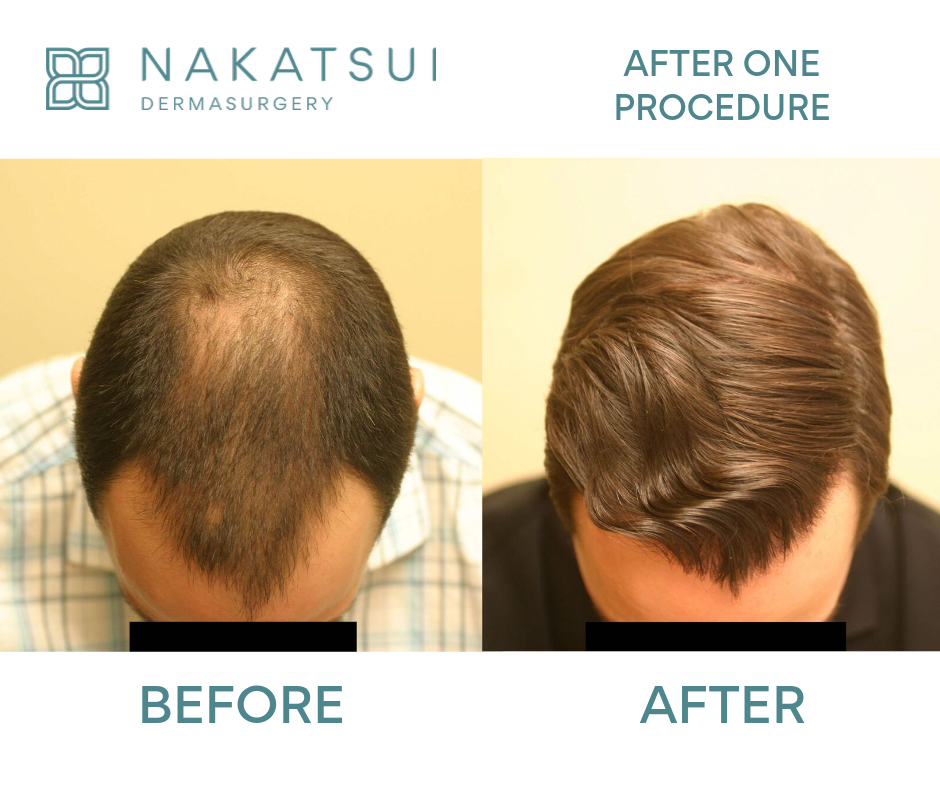 top view before and after hair restoration edmonton