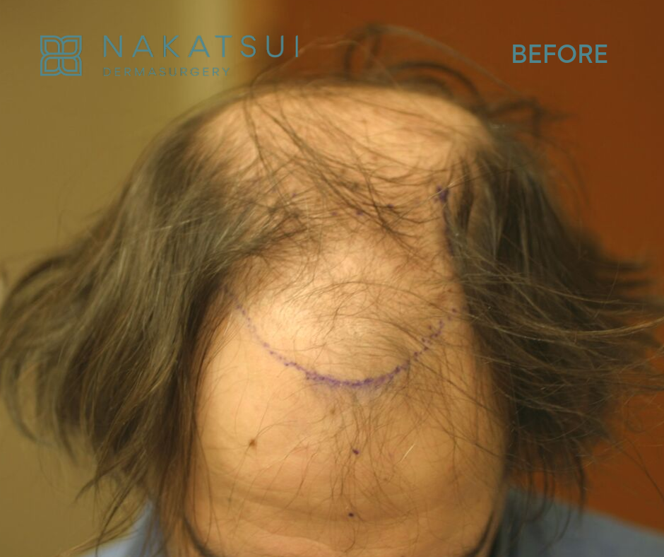 hair restoration edmonton before top