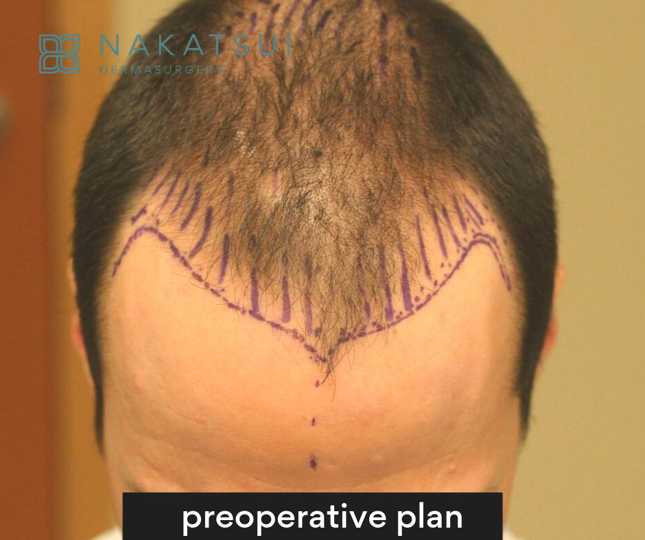 preoperative plan hair restoration edmonton