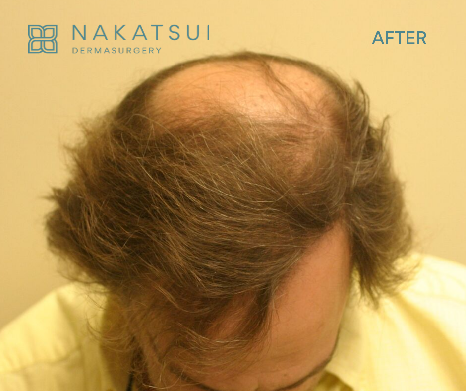 hair restoration edmonton after top