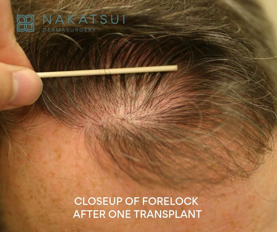 closeup hair restoration
