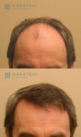 FUT frontal scalp before and after hair transplant