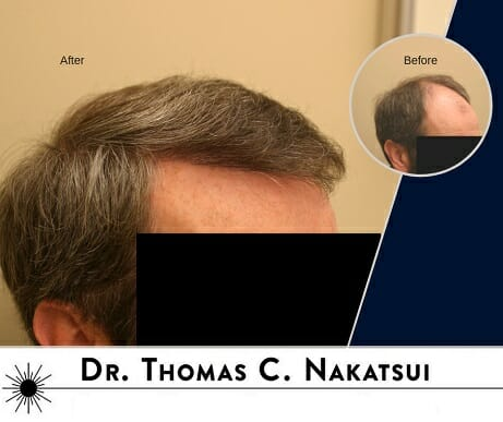 Hair Transplant hairline and frontal scalp Edmonton