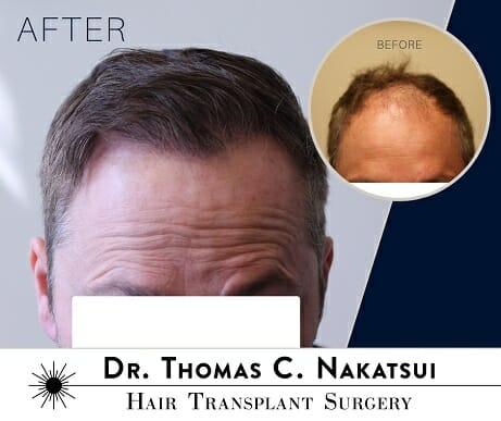 hair transplant hair loss hair line edmonton alberta canada