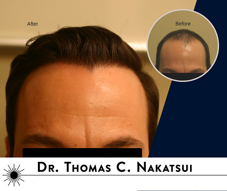 Scalp hair restoration one session Edmonton Alberta Canada