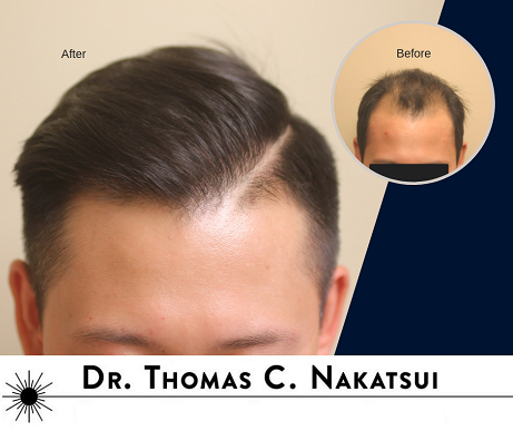Asian Hair Transplant Edmonton