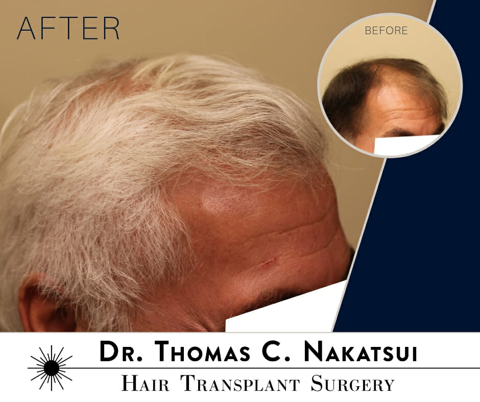 Hair Transplant Restoration Surgery edmonton alberta canada Hair Loss follicular unit transplant follicular unit extraction
