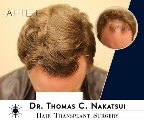 Hair Transplant Restoration Surgery edmonton alberta canada Hair Loss follicular unit transplant follicular unit extraction