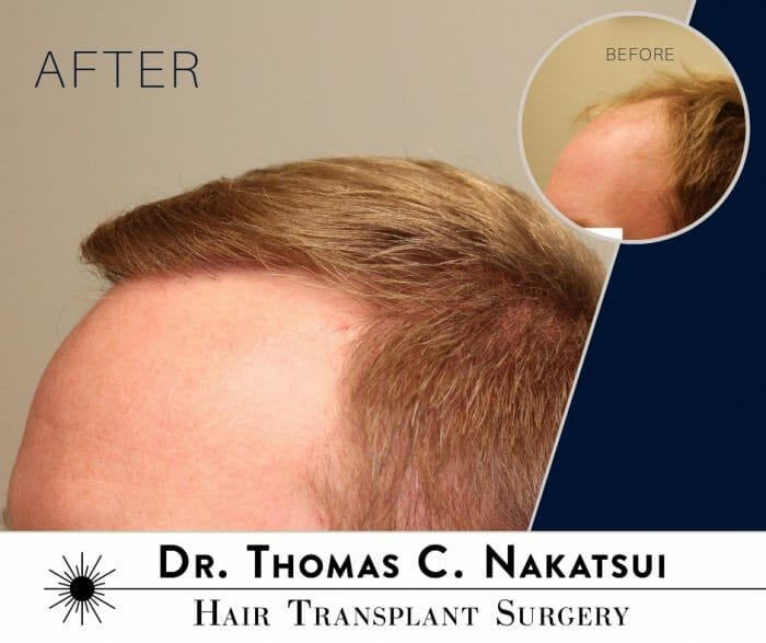 before and after results of hair transplant surgery receded hairline and frontal scalp
