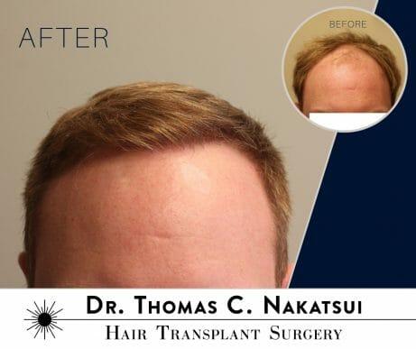 hair transplant restoration surgery follicular unit transplant extraction FUE hair loss hair growth edmonton alberta canada