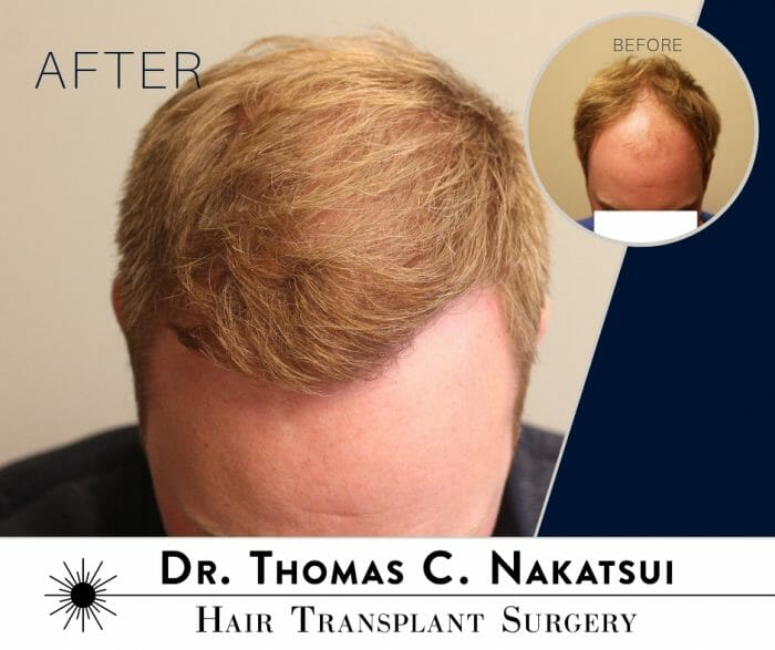 before and after results one follicular unit hair transplant surgery edmonton alberta canada