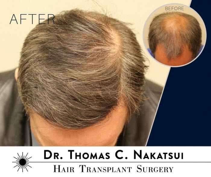 Crown Hair Transplant Receding Hairline restoration Edmonton Alberta Canada