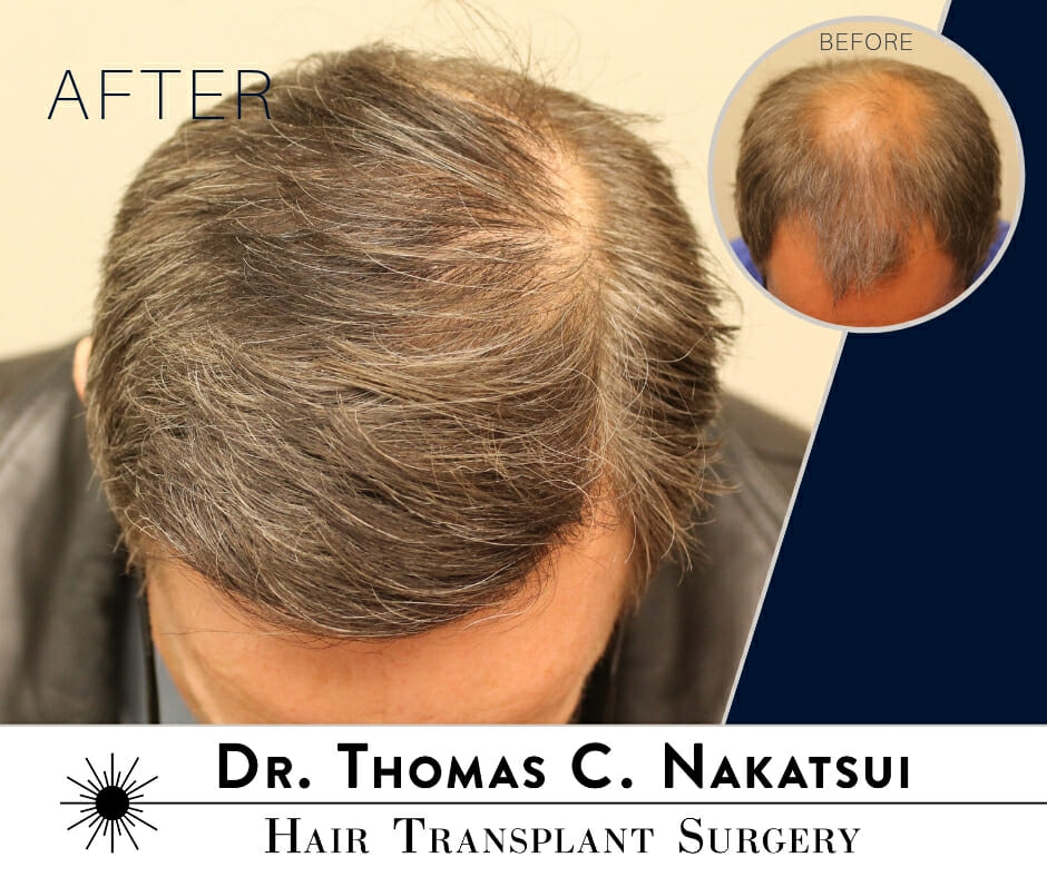 Hair Transplant Restoration Surgery Hair Loss Hair regrowth natural Follicular Unit Transplant Follicular Unit Extraction Edmonton Alberta Canada