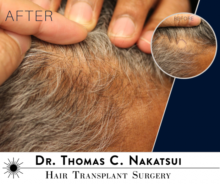 FUE Hair Transplant for scarring hair loss edmonton alberta canada