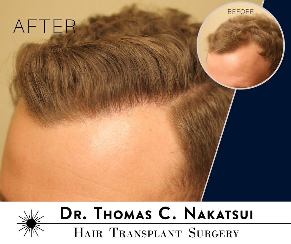 Hair Transplant Restoration Surgery Follicular Unit Extraction FUE hair loss edmonton alberta canada