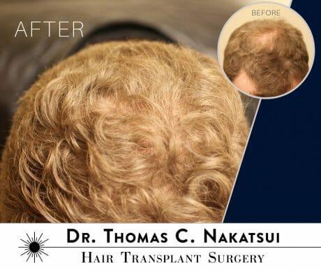Hair Transplant Restoration Surgery Follicular Unit Extraction FUE hair loss edmonton alberta canada