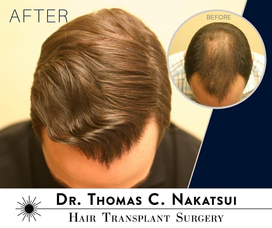 Hair Transplant Restoration Surgery hair loss edmonton alberta canada