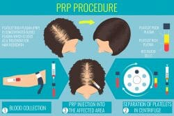 Infographic PRP